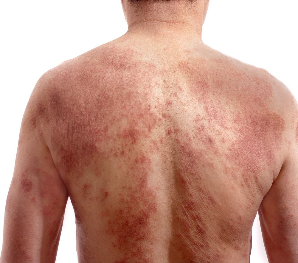 Bed Bug Rash